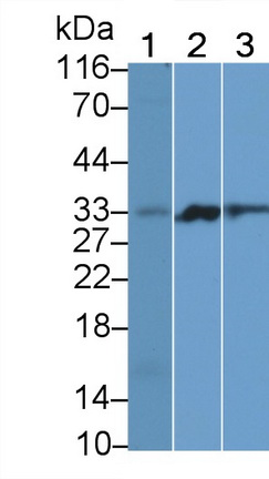 Polyclonal Antibody to Programmed Cell Death Protein 1 (PD1)