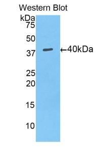 Polyclonal Antibody to Mucin 5 Subtype AC (MUC5AC)