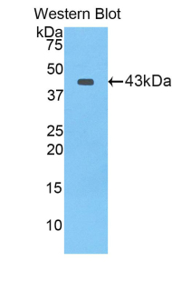 Polyclonal Antibody to Lactoferrin (LTF)