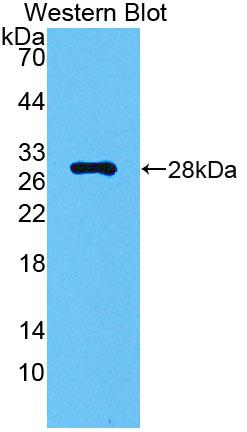 Polyclonal Antibody to Carbonic Anhydrase II (CA2)