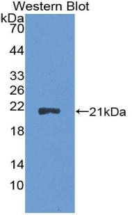 Polyclonal Antibody to Cyclin Dependent Kinase Inhibitor 2A (CDKN2A)