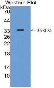 Polyclonal Antibody to Bone Morphogenetic Protein 7 (BMP7)