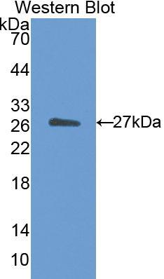 Polyclonal Antibody to Cholesteryl Ester Transfer Protein (CETP)