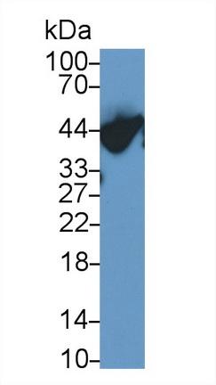 Polyclonal Antibody to Alpha-1-Acid Glycoprotein (a1AGP)