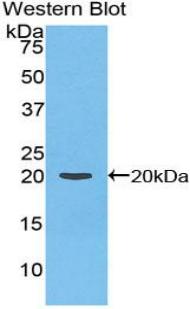 Polyclonal Antibody to Coagulation Factor II (F2)