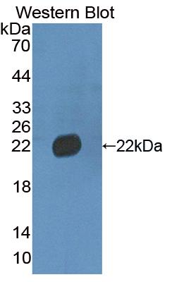 FITC-Linked Polyclonal Antibody to Von Willebrand Factor (vWF)