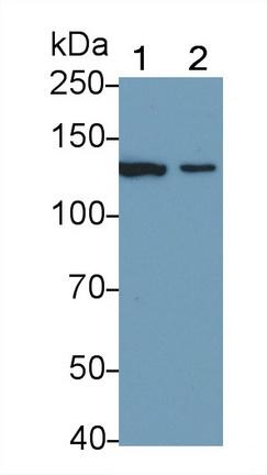 Polyclonal Antibody to Nitric Oxide Synthase 2, Inducible (NOS2)
