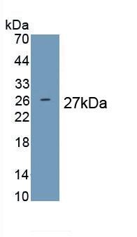Polyclonal Antibody to Prolactin (PRL)