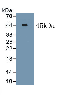 Polyclonal Antibody to Serum Amyloid A (SAA)