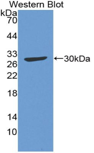 Polyclonal Antibody to Complement Component 4 (C4)