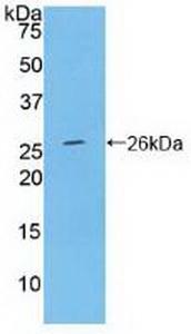 Polyclonal Antibody to Ceruloplasmin (CP)