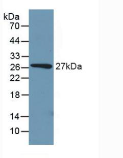 Polyclonal Antibody to Phosphoenolpyruvate Carboxykinase 1, Soluble (PCK1)