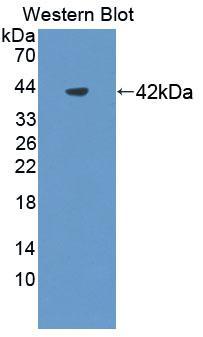 Polyclonal Antibody to Nephrin (NPHN)