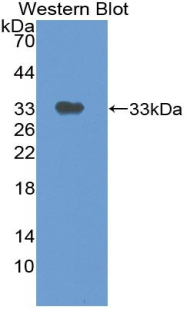Polyclonal Antibody to Thymidine Phosphorylase (TP)
