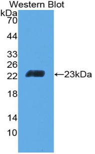 Polyclonal Antibody to Cluster Of Differentiation 6 (CD6)