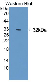 Polyclonal Antibody to Signal Regulatory Protein Alpha (SIRPa)