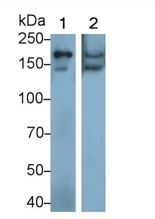 Polyclonal Antibody to Procollagen I N-Terminal Propeptide (PINP)