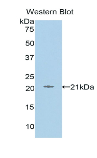 Polyclonal Antibody to L1-Cell Adhesion Molecule (L1CAM)