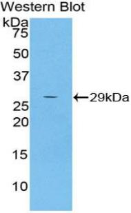 Polyclonal Antibody to Alpha-2-Macroglobulin Like Protein 1 (a2ML1)