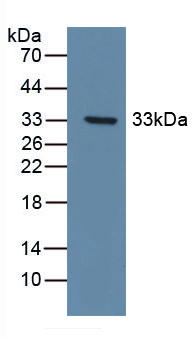 Polyclonal Antibody to Discoidin Domain Receptor Family, Member 1 (DDR1)