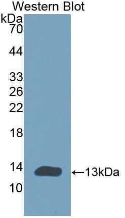 Polyclonal Antibody to Cholinergic Receptor, Nicotinic, Alpha 1 (CHRNa1)