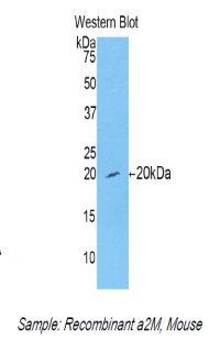 Polyclonal Antibody to Alpha-2-Macroglobulin (a2M)