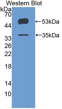 Polyclonal Antibody to Angiopoietin Like Protein 4 (ANGPTL4)