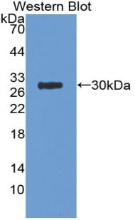 Polyclonal Antibody to Amyloid Precursor Protein (APP)