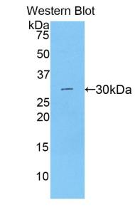 Polyclonal Antibody to Beta Catenin (β-catenin)