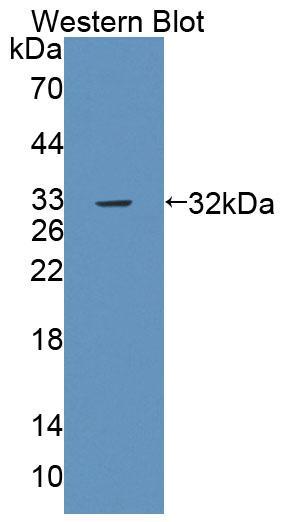 Polyclonal Antibody to Protein Tyrosine Phosphatase Receptor Type B (PTPRB)