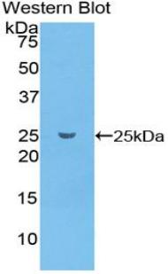 Polyclonal Antibody to Glutathione S Transferase Pi (GSTp)
