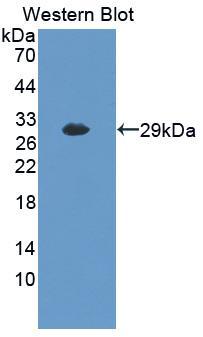Polyclonal Antibody to Brain Finger Protein (BFP)
