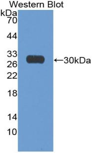 Polyclonal Antibody to Nuclear Matrix Protein 4 (NMP4)
