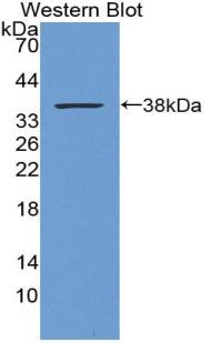 Polyclonal Antibody to Metallothionein 1 (MT1)