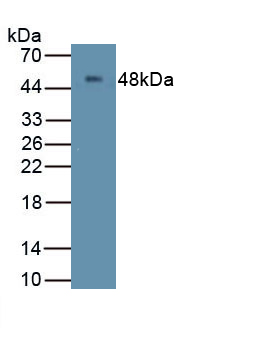 Polyclonal Antibody to Membrane Spanning 4 Domains Subfamily A, Member 1 (CD20)