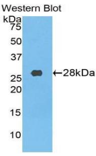 Polyclonal Antibody to Transferrin Receptor (TFR)