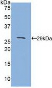 Polyclonal Antibody to Cluster Of Differentiation 1d (CD1d)