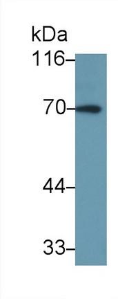 Polyclonal Antibody to Interleukin 27 Receptor Alpha (IL27Ra)
