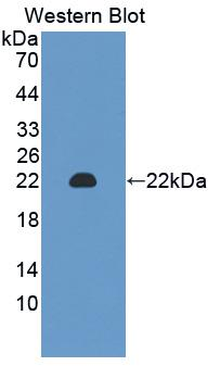 Polyclonal Antibody to Chromogranin A (CHGA)