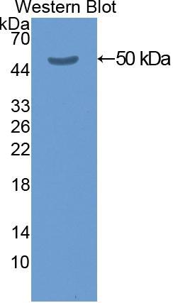 Polyclonal Antibody to Cytokeratin 20 (CK 20)