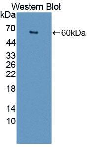 Polyclonal Antibody to Scavenger Receptor Class D Member 1 (SCARD1)