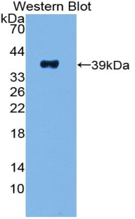 Polyclonal Antibody to Pancreatic Polypeptide (PP)