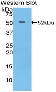 Polyclonal Antibody to Integrin Alpha 6 (ITGa6)