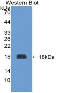 Polyclonal Antibody to Agouti Related Protein (AGRP)