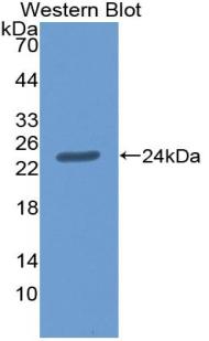 Polyclonal Antibody to Agrin (AGRN)