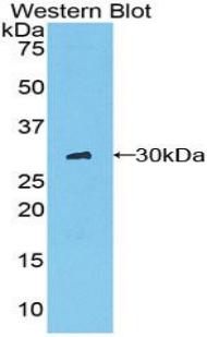 Polyclonal Antibody to Chymotrypsin C (CTRC)