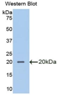 Polyclonal Antibody to Secretory Leukocyte Peptidase Inhibitor (SLPI)