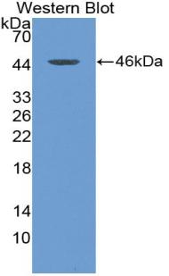 Polyclonal Antibody to Thymic Stromal Lymphopoietin (TSLP)