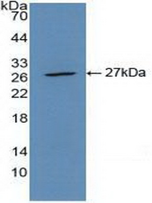 Polyclonal Antibody to Actin Alpha 2, Smooth Muscle (ACTa2)
