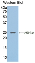Polyclonal Antibody to Adipose Differentiation Related Protein (ADRP)